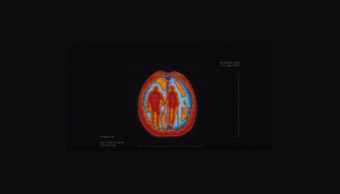 Sfaturi Alzheimer